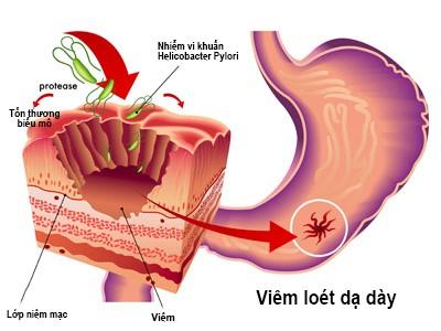 viêm loét dạ dày do nhiễm khuẩn hp