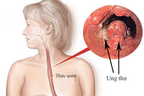 Trào ngược dạ dày nguyên nhân gây ung thư.