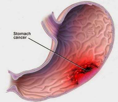 Hình ảnh dạ dày bị viêm loét