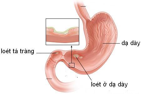 Loét dạ dày hành tá tràng mang đến nhiều nguy hiểm cho sức khỏe của bạn.
