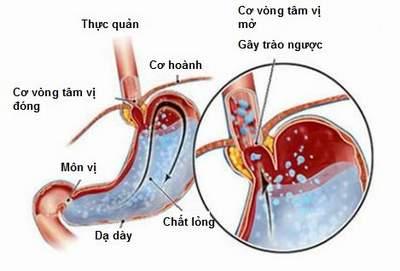 Hẹp môn vị có thể là biến chứng của bệnh loét dạ dày hành tá tràng.