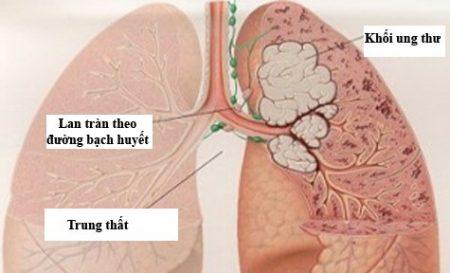 Ung thư phổi: Nguy hiểm cận kề nhưng vẫn tránh được