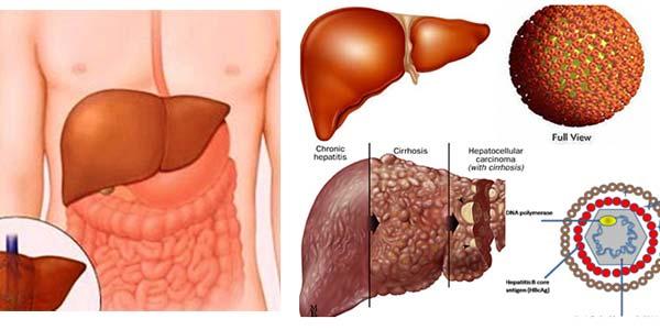 Ung thư dạ dày di căn đến gan