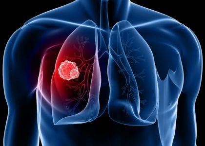 Ung thư phổi: Căn bệnh nguy hiểm nhưng không phải dấu chấm hết