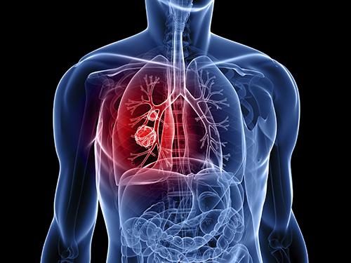 Ung thư phổi là căn bệnh có nguy cơ tử vong hàng đầu thế giới.