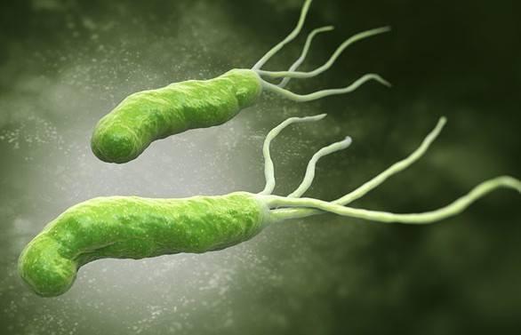vi khuẩn HP là tác nhân hàng đầu gây viêm loét dạ dày dẫn đến ung thư dạ dày