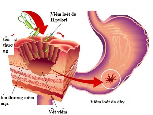 Vi khuẩn Hp là nguyên nhân chính gây nên viêm loét niêm mạc dạ dày tá tràng.