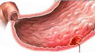 Dạ dày đang bị chảy máu