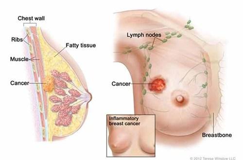 ung thư
