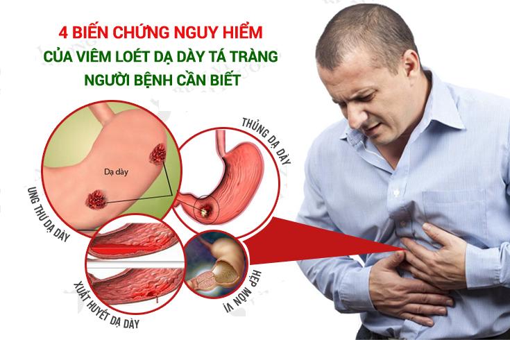 Bệnh viêm loét dạ dày tá tràng có nguy hiểm không?