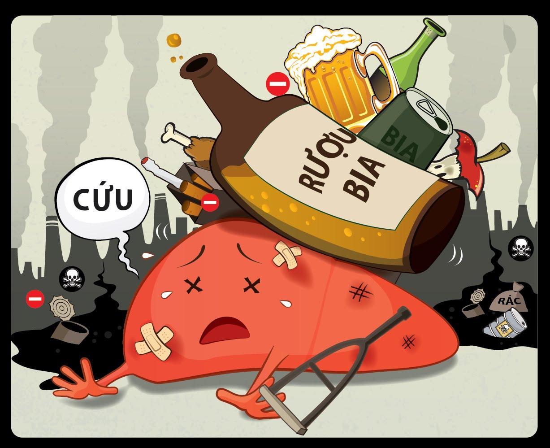 Rượu bia và các chất kích thích là một trong những nguyên nhân gây viêm loét dạ dày tá tràng.