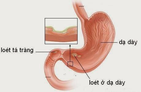 phân biệt viêm hành tá tràng và viêm loét dạ dày