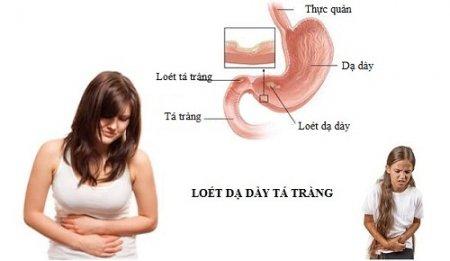 Đau bụng có phải triệu chứng nguy hiểm của viêm loét dạ dày?