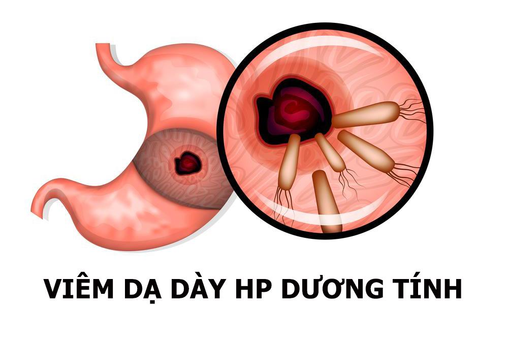 Phác đồ điều trị viêm loét dạ dày có HP dương tính