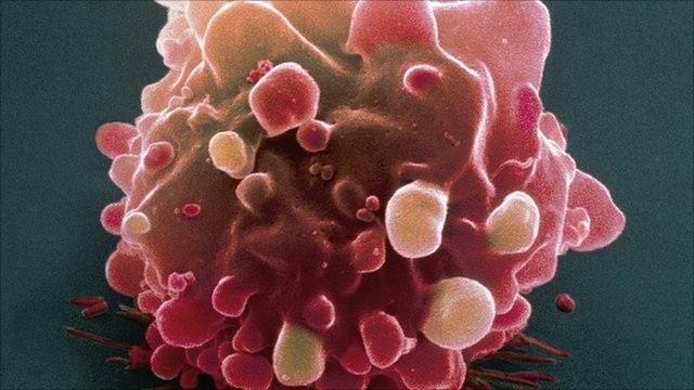 ung thư có di truyền không và cách phòng ngừa