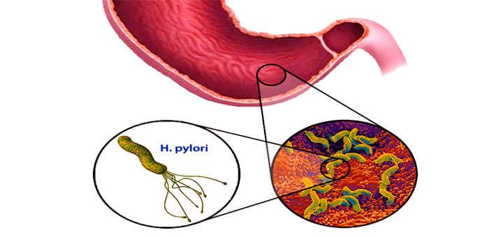 Vi khuẩn Hp là một nguyên nhân chính gây loét dạ dày tá tràng.