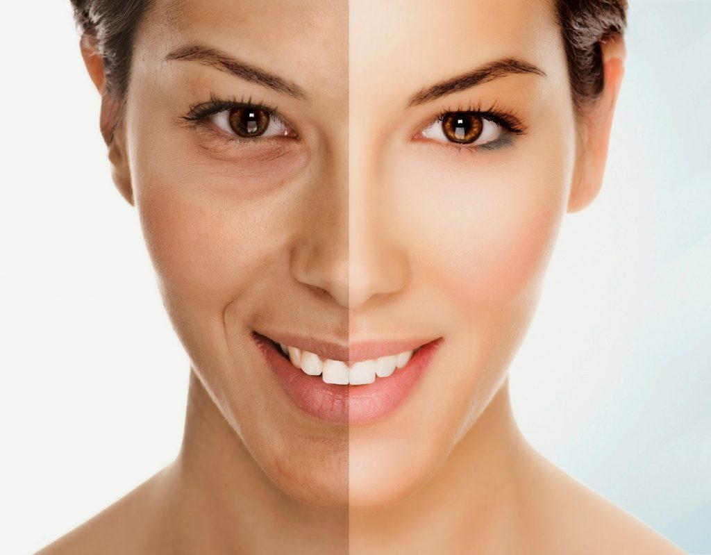 Sau sinh da người phụ nữ thường bị sạm đen