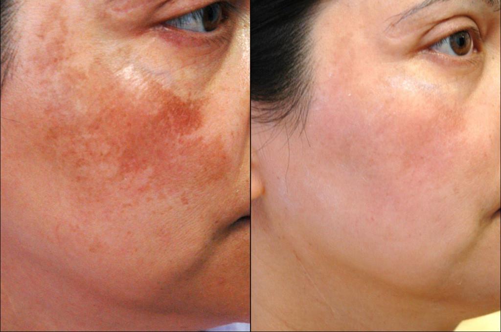 Cách làm đẹp da mặt sau sinh, trị nám hiệu quả