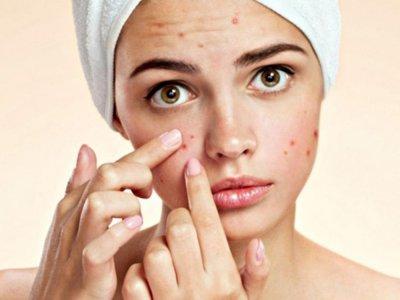 Công dụng tinh bột nghệ với da mặt