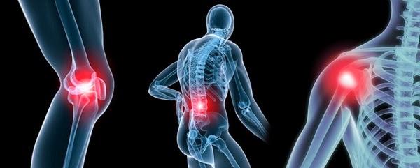 Củ nghệ chứa Tinh chất curcumin giúp kháng viêm rất hiệu quả.