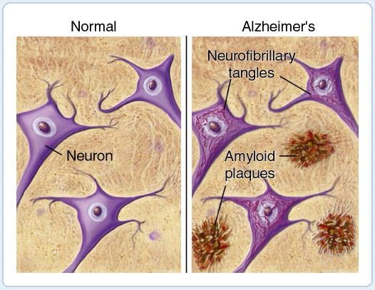 """Mảng """"beta amyloid"""" là nguyên nhân cơ bản dẫn đến bệnh Alzheimer"""