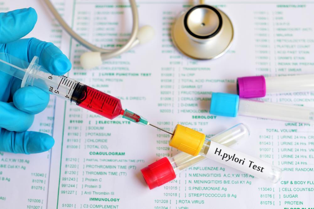 sử dụng thuốc điều trị vi khuẩn hp không theo hướng dẫn bác sĩ là sai lầm