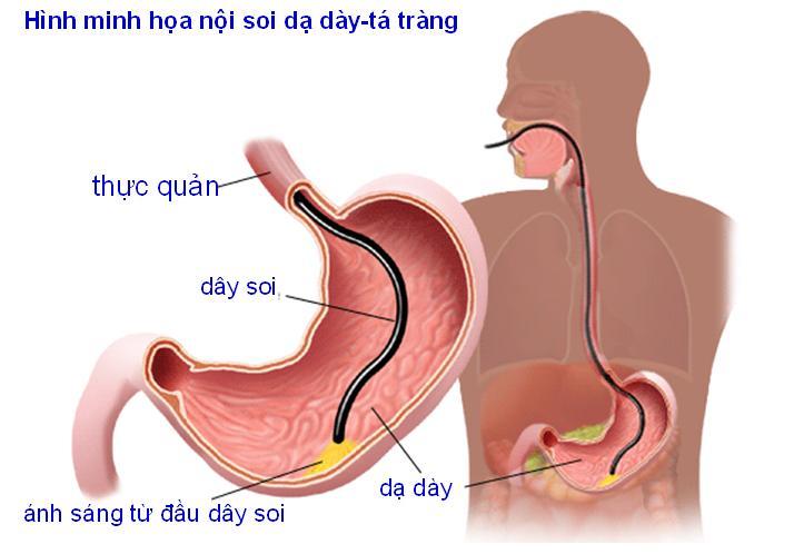Nội soi giúp xác định chính xác vị trí vết loét ở dạ dày hay ở tá tràng.