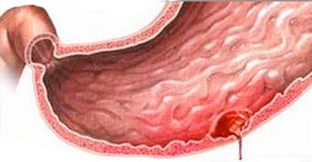 Thủng dạ dày vì tự ý tiêm thuốc giảm đau