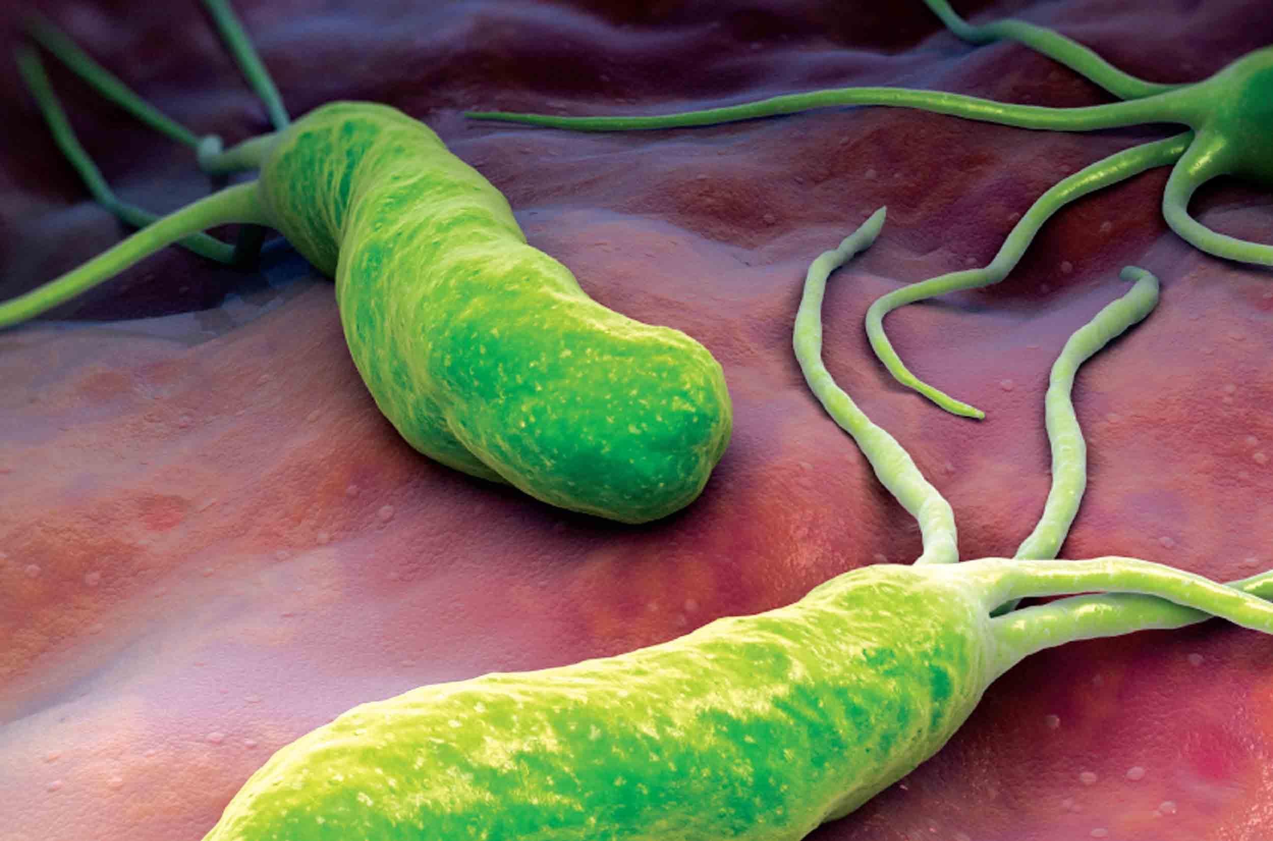 Vi khuẩn HP gây tổn thương màng dạ dày.