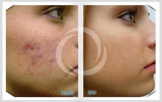 Làm đẹp sau sinh với tinh bột nghệ: đắp mặt giúp ngăn ngừa vết thâm, liền sẹo