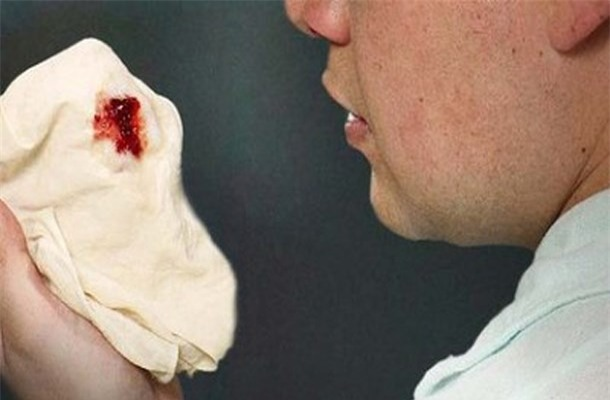 Dấu hiệu của ung thư dạ dày là nôn ra máu