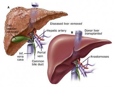 Vô tình đi khám, phát hiện khối u gan