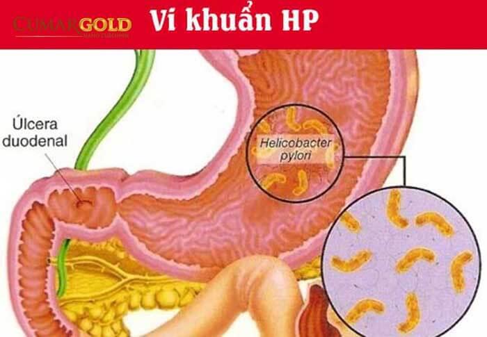Vi khuẩn HP gây viêm niêm mạc dạ dày hành tá tràng
