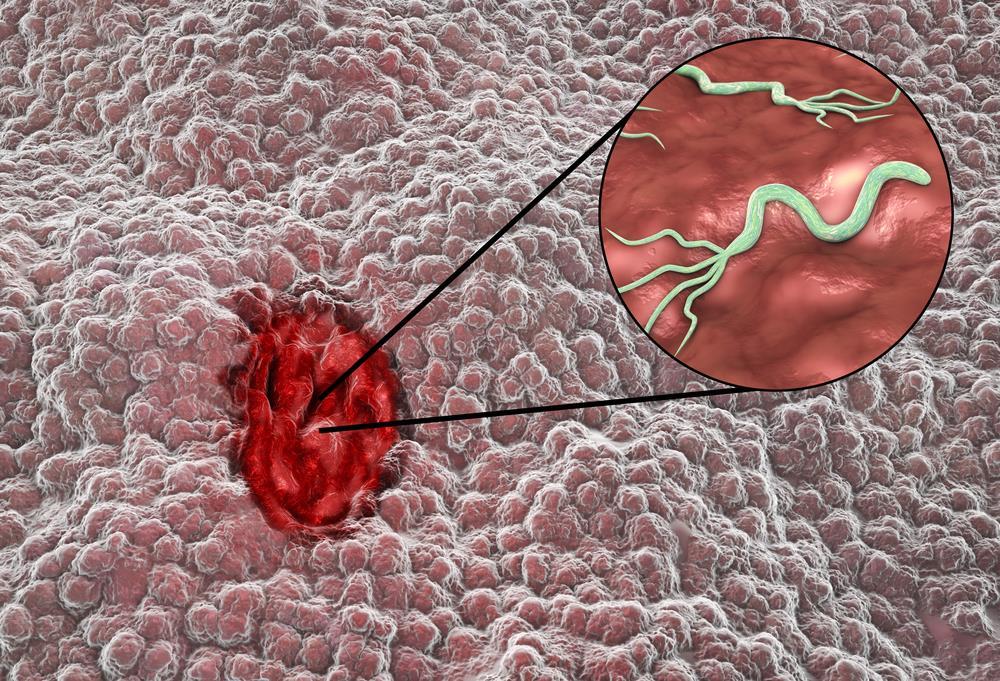 Nhiễm vi khuẩn HP là nguyên nhân chính gây viêm loét dạ dày