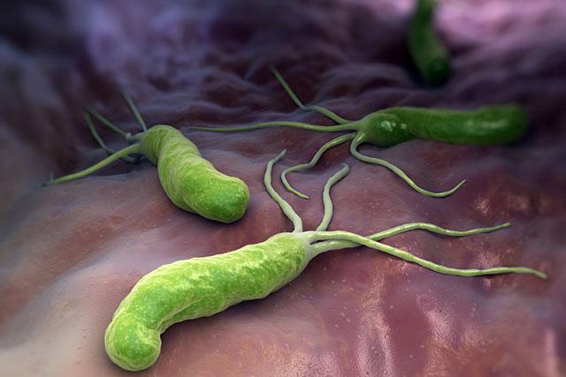 vi khuẩn hp chỉ được nhận ra khi có các triệu chứng đau dạ dày