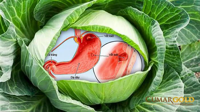 Chữa dạ dày bằng bài thuốc bắp cải