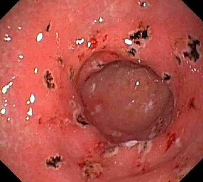 Hình ảnh nội soi cho thấy viêm hang vị bị viêm
