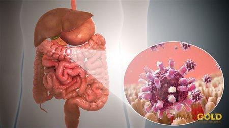 Viêm dạ dày ruột cấp và những điều bạn cần biết