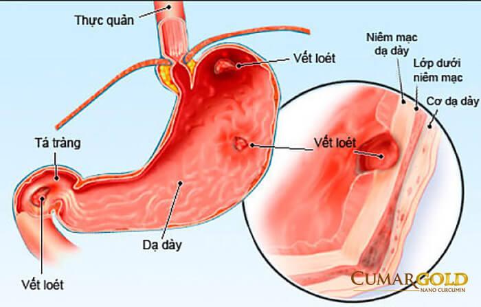 Bệnh viêm dạ dày và tá tràng