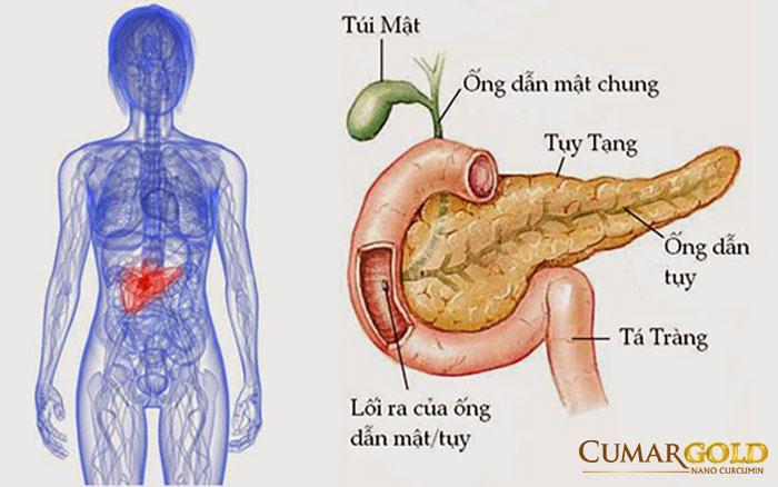 Bệnh viêm tụy
