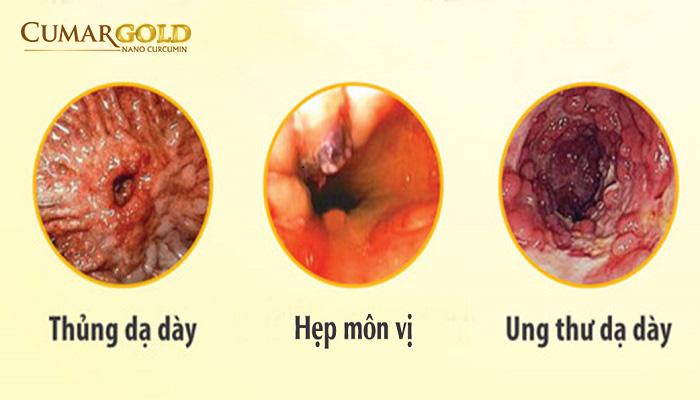 Biến chứng viêm loét dạ dày