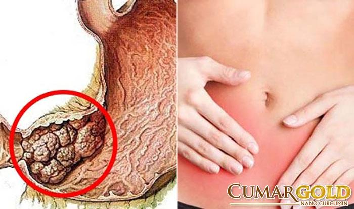 Biến chứng ung thư dạ dày