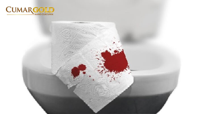 Đại tiện ra máu