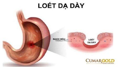 Sinh lý bệnh viêm loét dạ dày tá tràng