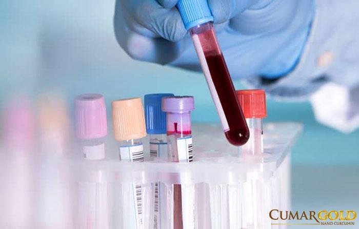 Phương pháp xét nghiệm máu