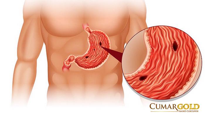 Thủng dạ dày