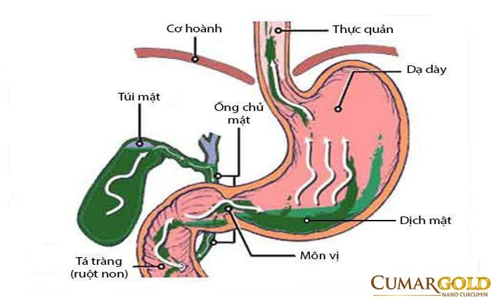 Viêm hang vị trào ngược dịch mật là bệnh lý phổ biến mà rất nhiều người mắc phải.
