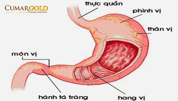 sự khác nhau giữa viêm xung huyết hang vị và Viêm phình vị dạ dày