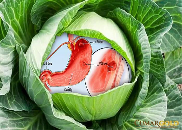 Chế độ ăn uống ảnh hưởng nghiêm trọng đến người mắc viêm trợt hang vị.