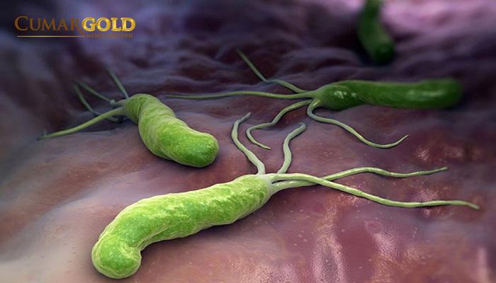Trường hợp nên xét nghiệm vi khuẩn HP